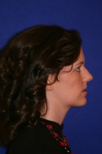 Profile with my lower jaw jutting forward. This was taken to demonstrate how my profile was likely to change with surgery.