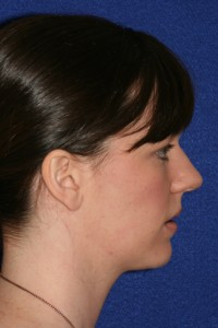 Profile view.