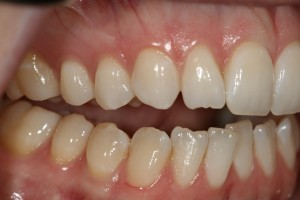 My bite, with teeth clenched. Pre-braces and surgery.